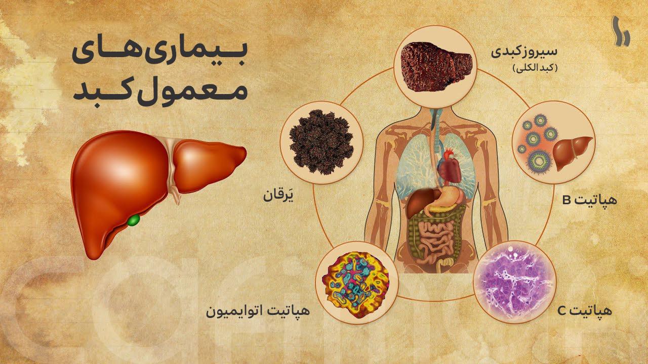 بیماری های کبد